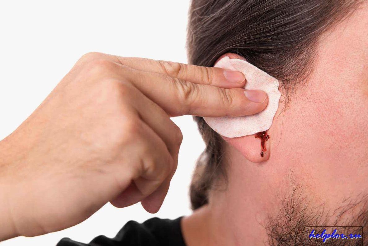 кровь из уха